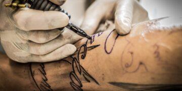 Ile kosztuje usunięcie tatuażu?